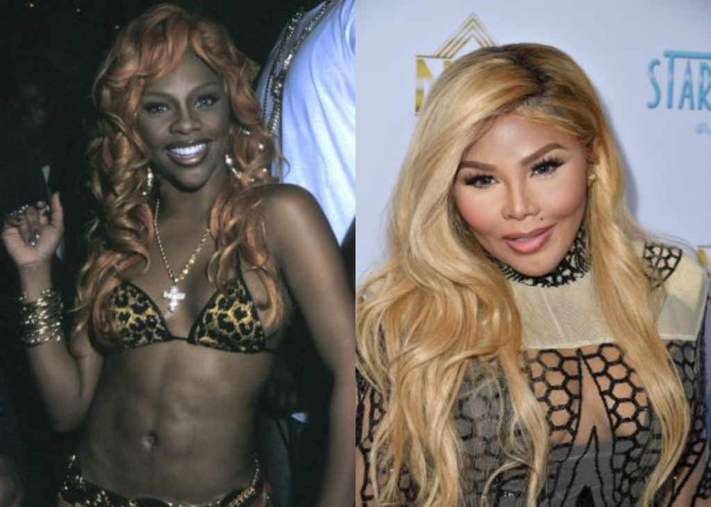Lil Kim's comparison before and after photo since plastic surgery